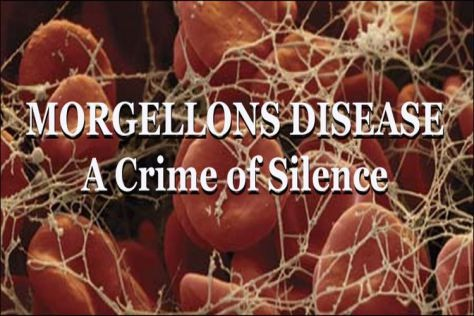 morgellons-syndrome-crime-of-silence